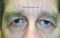 Pre-Operative photograph: Brow Ptosis, excess skin